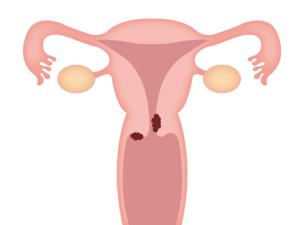 子宮頸がん病巣